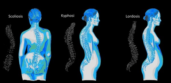 cms fitness courses - spine curvature